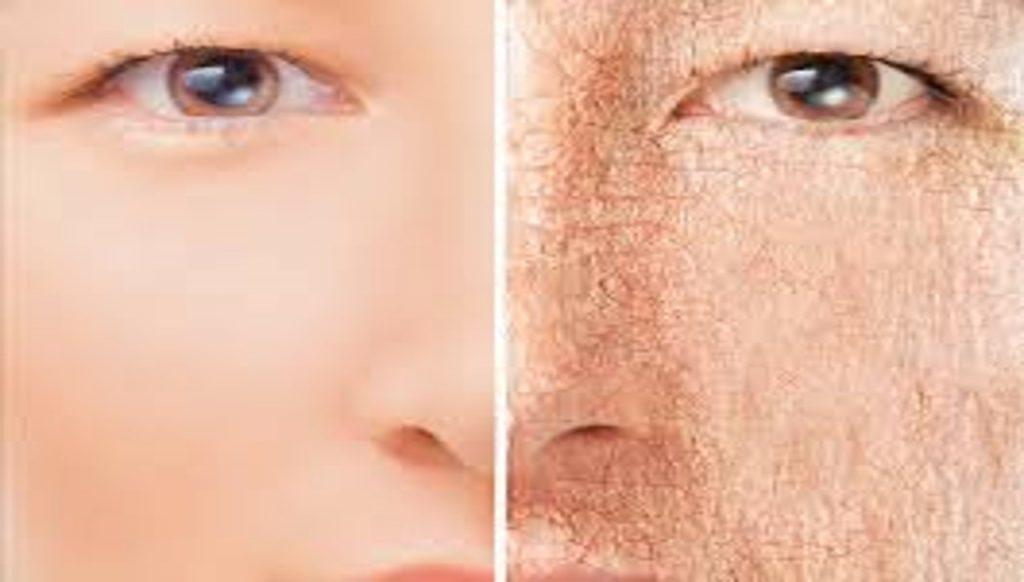 da khô trước và sau khi dùng mặt nạ dầu dừa