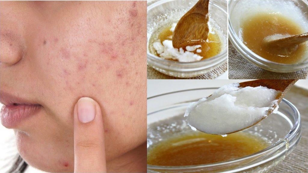 công thức dầu dừa và mật ong cho da mặt