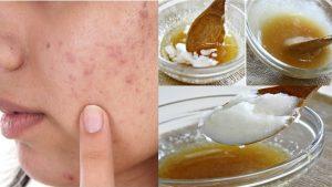 5 công thức dùng dầu dừa dưỡng da mặt