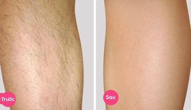 trước và sau khi tẩy lông chân bằng dầu dừa