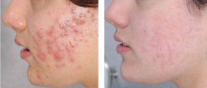 3 loại mặt nạ trị mụn bọc cho da nhờn từ dầu dừa