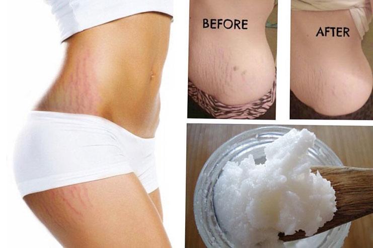 trước và sau khi massage da rạn với dầu dừa