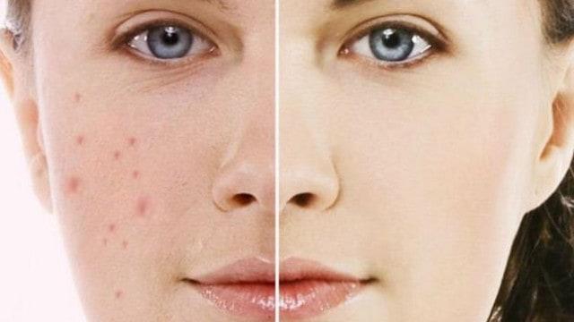 trước và sau khi dùng dầu dừa trị mụn